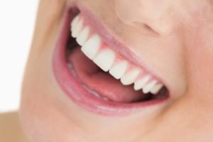 treatment for gummy smile in Queens NY