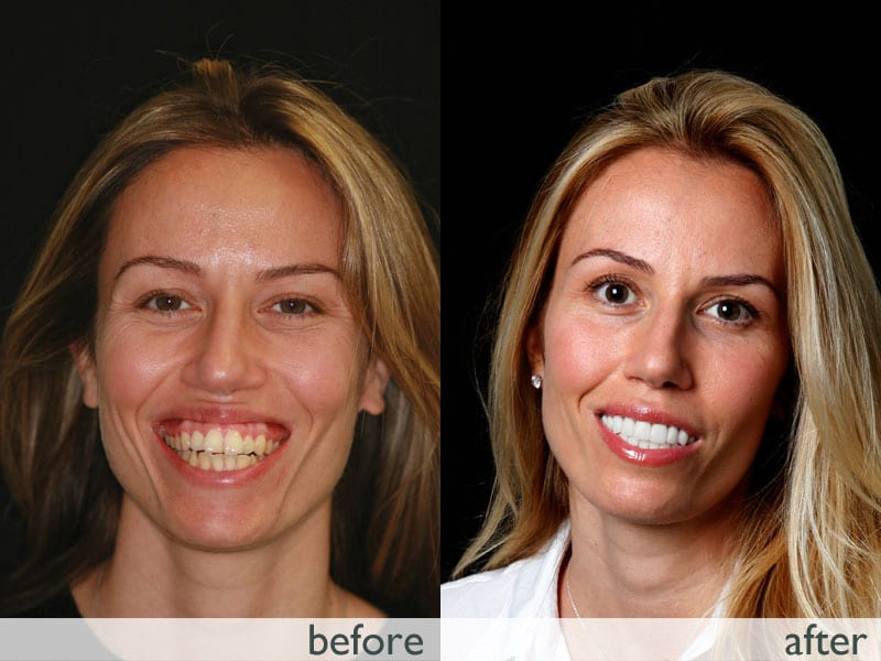 snap on smile before and after in Queens New York