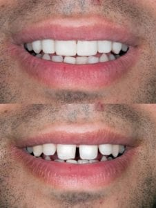 Invisalign in Queens NY