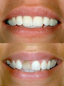 Before and After porcelain veneer