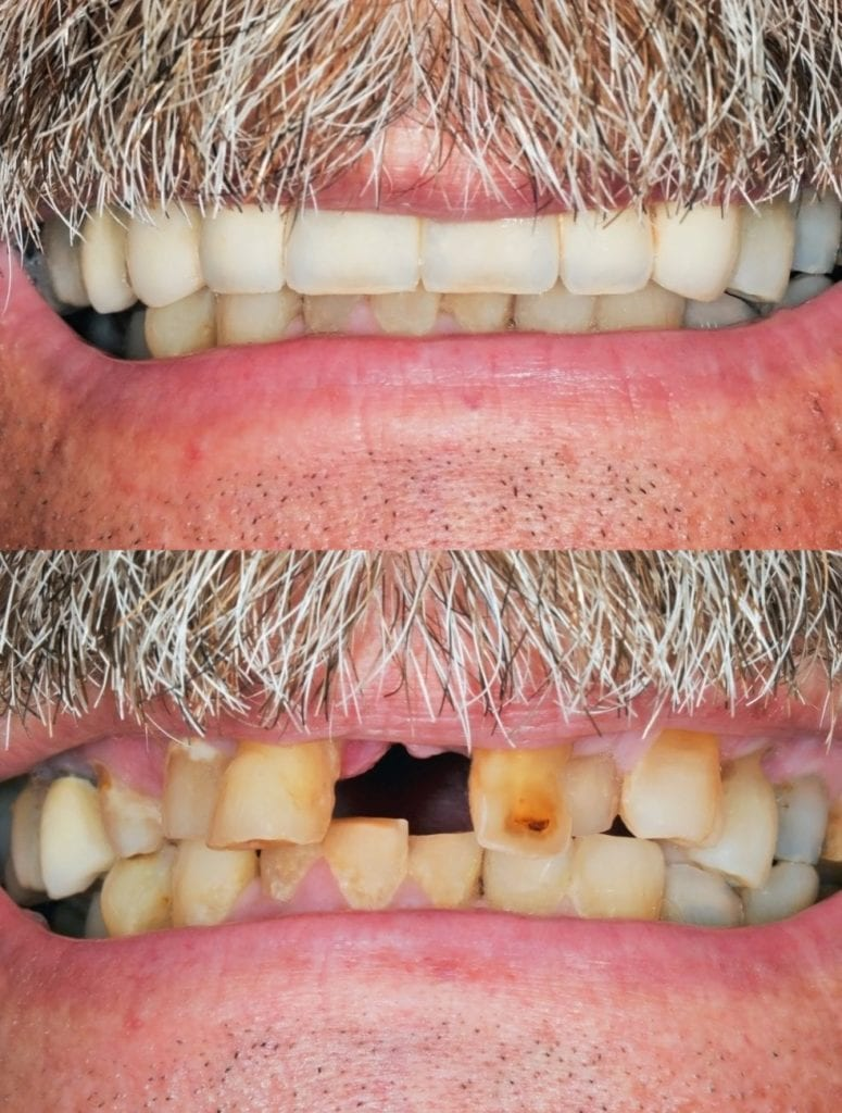 Replace missing teeth in Queens New York