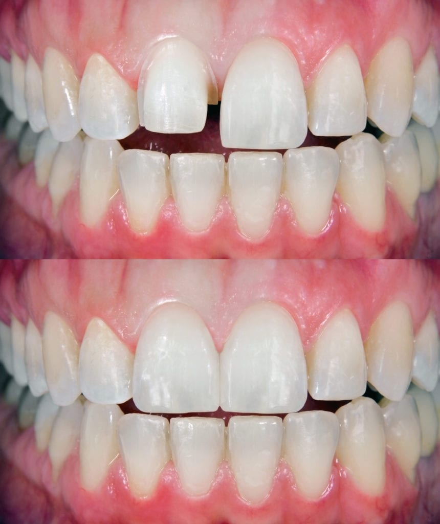 close the gap between teeth with porcelain veneers in Queens NY