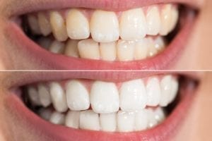 Teeth whitening in Queens New York