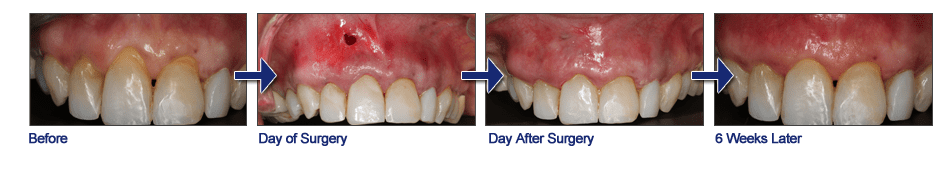 Fixing gum recession; before and after
