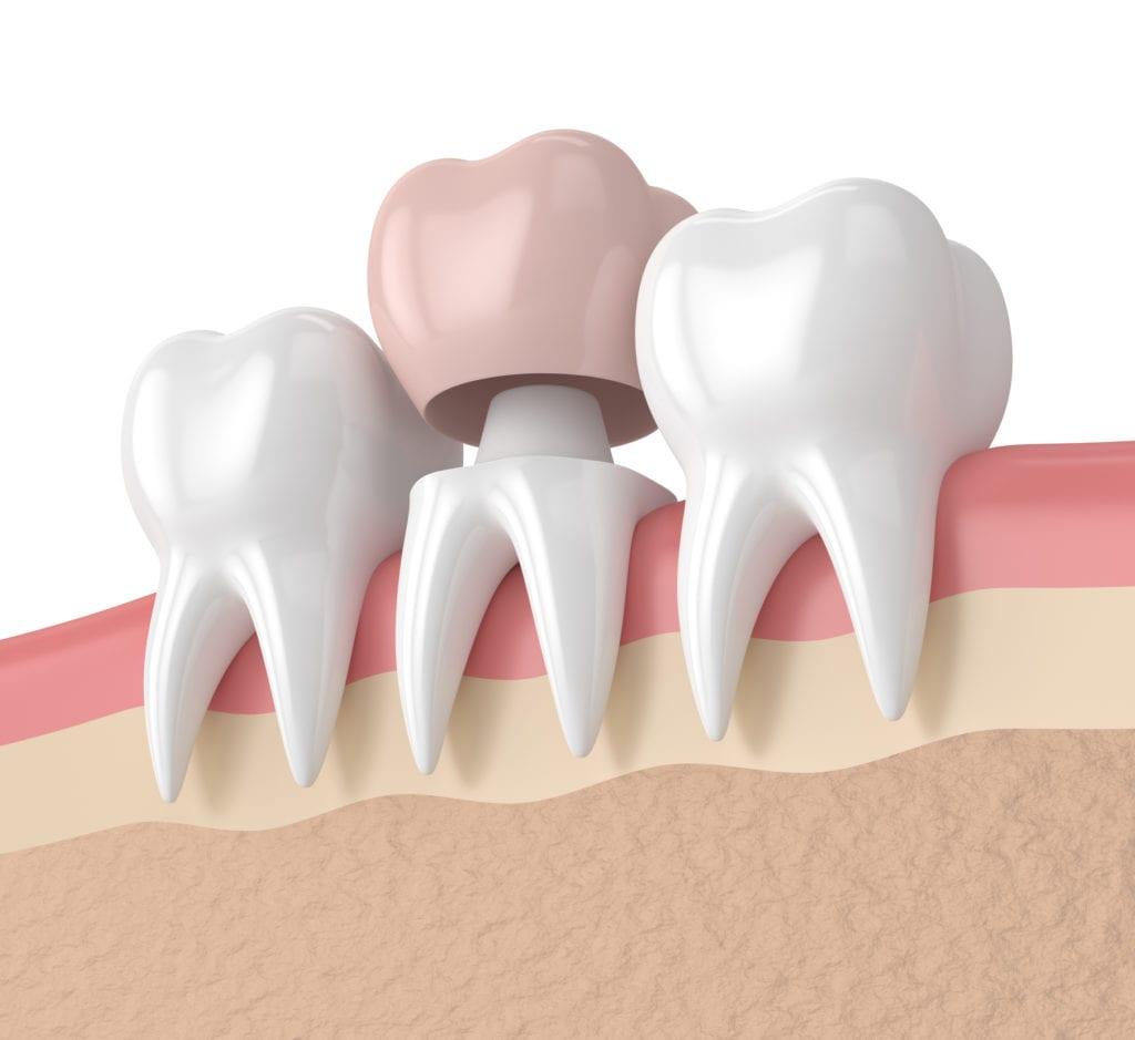 dental crown in Bayside New York