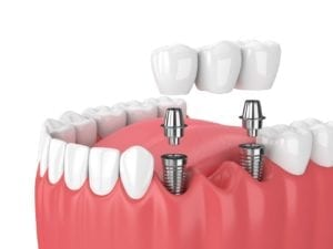dental implant supported bridge in Queens New York