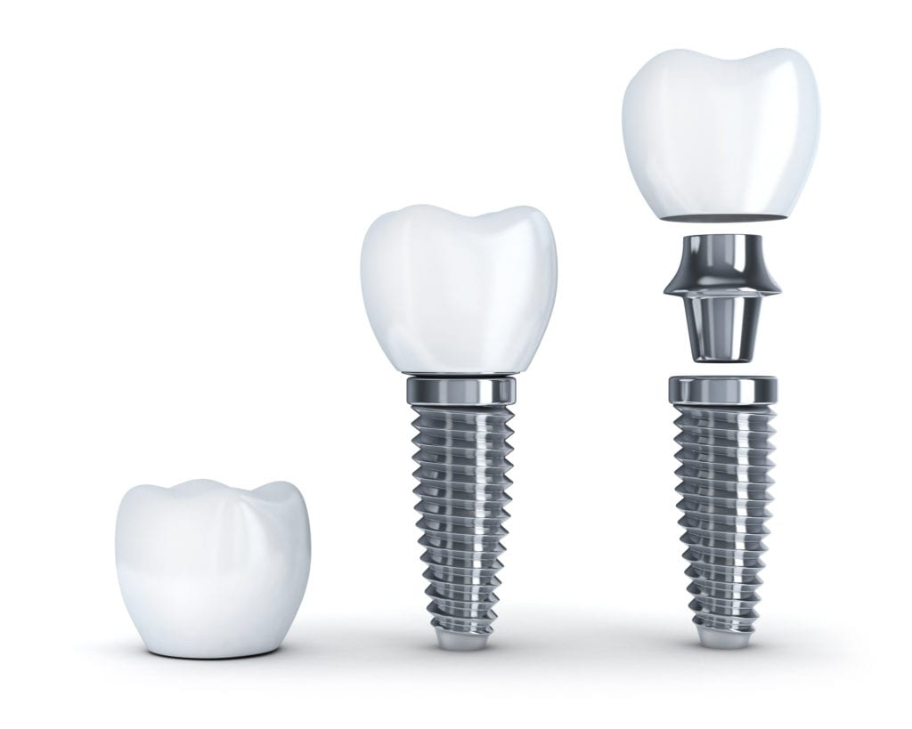 Dental Implant Process in Oyster Bay, Jackson Heights and Bayside, NY