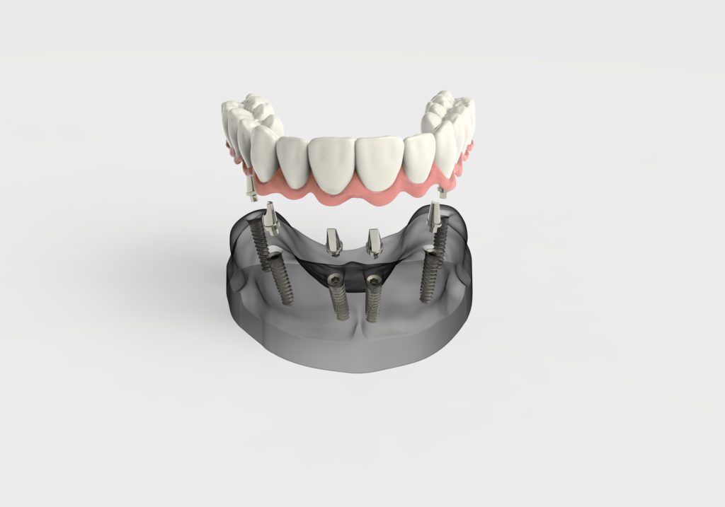 Multiple Dental Implants Oyster Bay and Bayside, NY